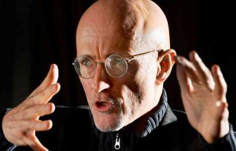 World's First Head Transplant Surgery Will Find Limelight In 2017